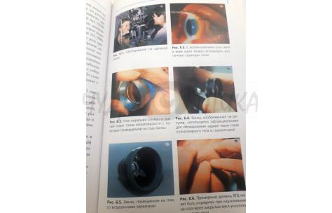 """Издание по офтальмологии"""" Глаукома"""" Джозеф Фламмер,2003/901007 by World Wide Printing"""